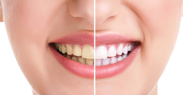 3 ways to effectively whiten your teeth